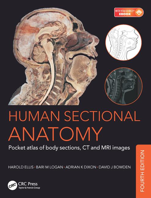 Human Sectional Anatomy Pocket Atlas Of Body Sections Ct And Mri Ima