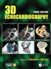 3D Echocardiography - 3rd Edition book cover