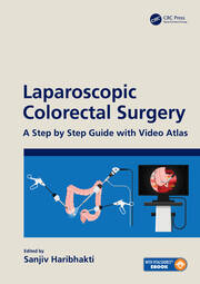 Laparoscopic Colorectal Surgery: A Step by Step Guide with Video Atlas