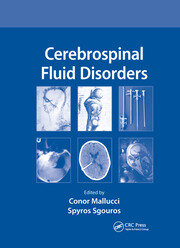 Cerebrospinal Fluid Disorders - 1st Edition book cover