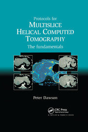 Protocols for Multislice Helical Computed Tomography - 1st Edition book cover