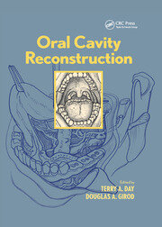 Oral Cavity Reconstruction - 1st Edition book cover