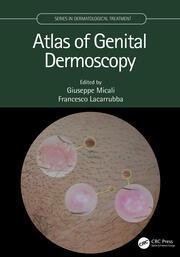 Atlas of Genital Dermoscopy - 1st Edition book cover
