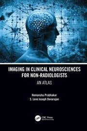 Imaging in Clinical Neurosciences for Non-radiologists - 1st Edition book cover