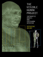 The Visible Human Project - 1st Edition book cover