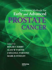 Treatment Methods for Early and Advanced Prostate Cancer