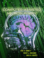Computer-Assisted Neurosurgery