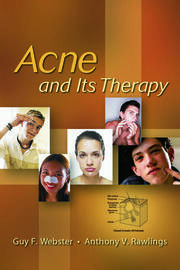 Acne and Its Therapy