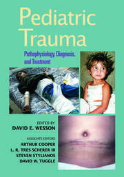 Pediatric Trauma: Pathophysiology, Diagnosis, and Treatment