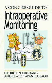 A Concise Guide to Intraoperative Monitoring
