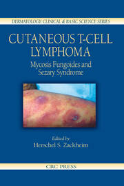 Cutaneous T-Cell Lymphoma: Mycosis Fungoides and Sezary Syndrome
