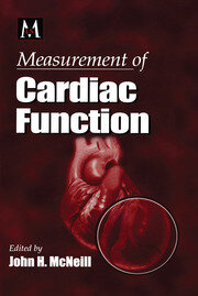 Measurement of Cardiac Function Approaches, Techniques, and Troubleshooting