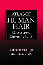 Atlas of Human Hair: Microscopic Characteristics