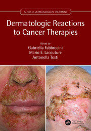 Dermatologic Reactions to Cancer Therapies - 1st Edition book cover