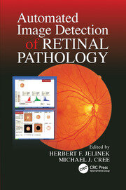 Automated Image Detection of Retinal Pathology - 1st Edition book cover