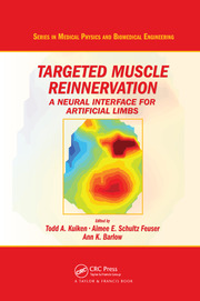 Targeted Muscle Reinnervation - 1st Edition book cover