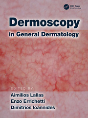 Dermoscopy in General Dermatology - 1st Edition book cover