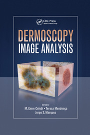 Dermoscopy Image Analysis - 1st Edition book cover