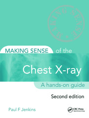 Making Sense of the Chest X-ray: A hands-on guide