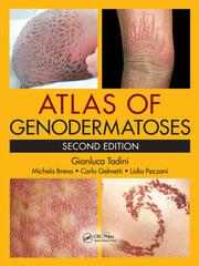 Atlas of Genodermatoses