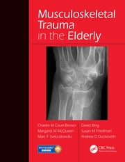 Musculoskeletal Trauma in the Elderly