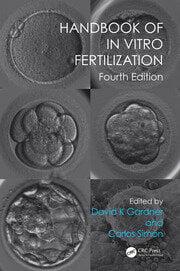 Handbook of In Vitro Fertilization