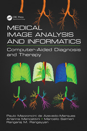 Medical Image Analysis and Informatics: Computer-Aided Diagnosis and Therapy
