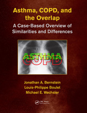 Asthma, COPD, and Overlap - 1st Edition book cover