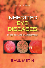 Inherited Eye Diseases: Diagnosis and Management