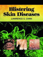 Blistering Skin Diseases