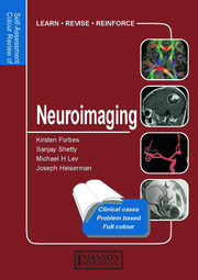 Neuroimaging - 1st Edition book cover