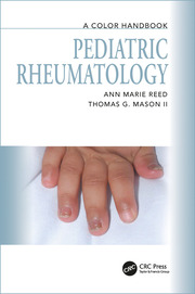 Pediatric Rheumatology: A Color Handbook