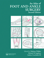 Atlas Foot and Ankle Surgery