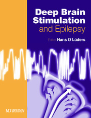 Deep Brain Stimulation and Epilepsy