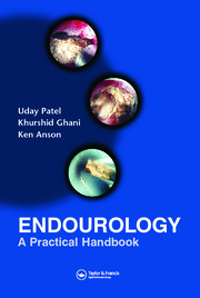 Endourology: A Practical Handbook