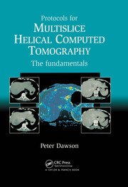 Protocols for Multislice Helical Computed Tomography: The Fundamentals