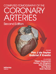 Computed Tomography of the Coronary Arteries