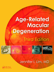 Age-Related Macular Degeneration, Third Edition