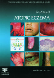 An Atlas of Atopic Eczema