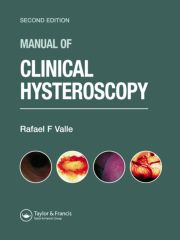 Manual of Clinical Hysteroscopy, Second Edition