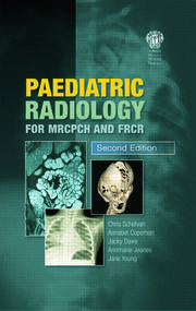 Paediatric Radiology for MRCPCH and FRCR, Second Edition