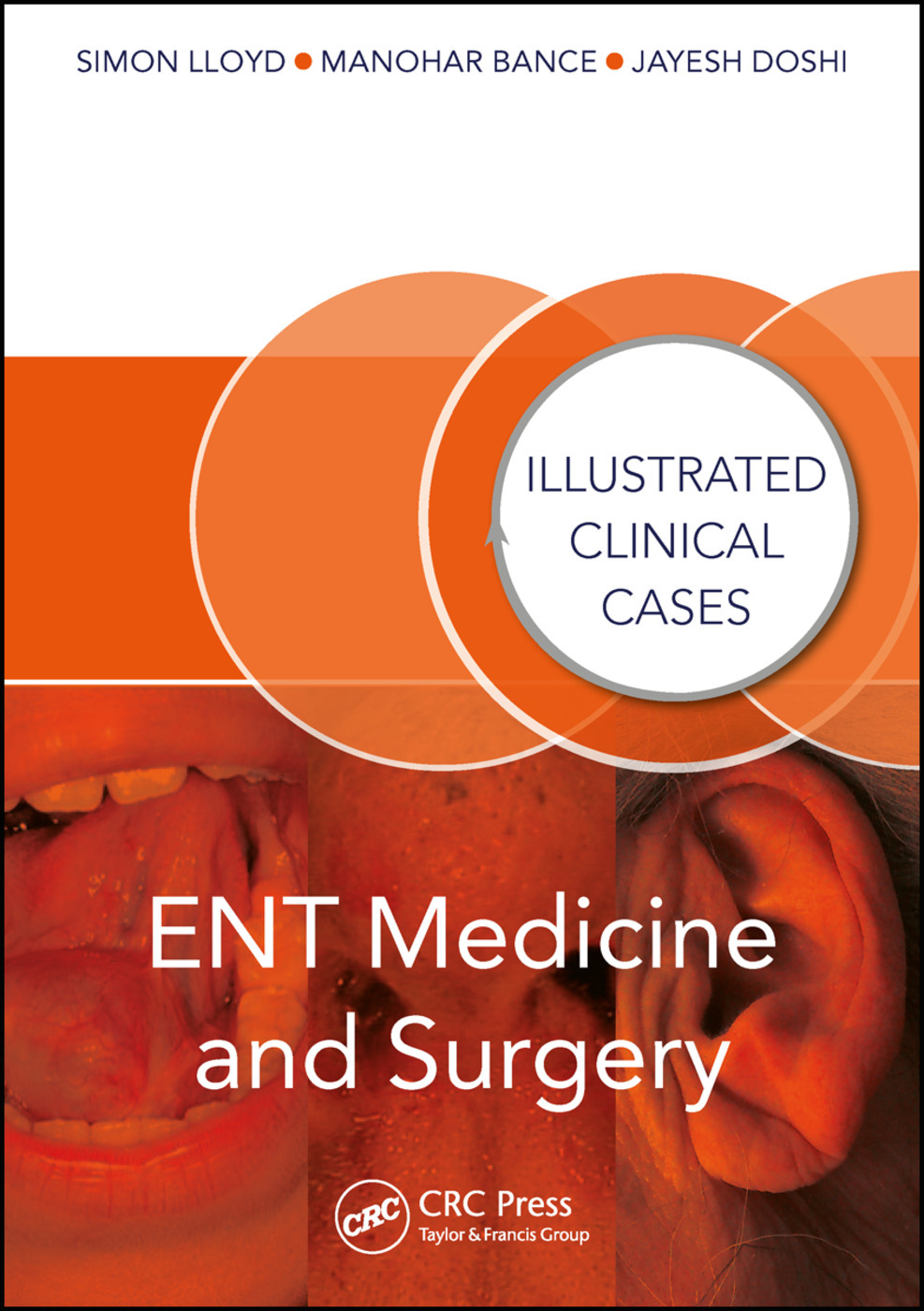 Ent Medicine And Surgery Illustrated Clinical Cases 1st Edition J