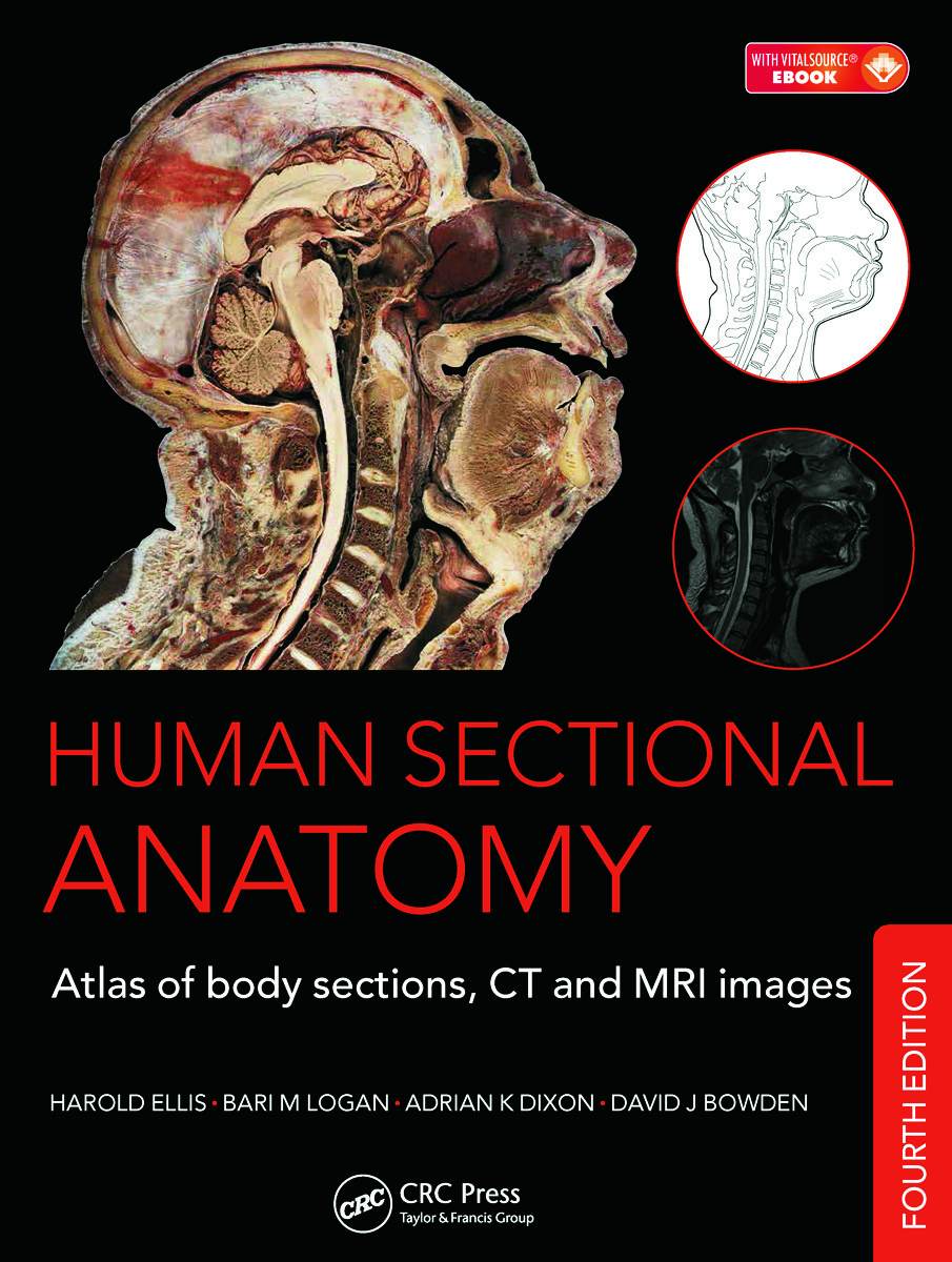 Human Sectional Anatomy: Atlas of Body Sections, CT and ...